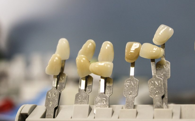 Śliczne zdrowe zęby także niesamowity przepiękny uśmiech to powód do zadowolenia.